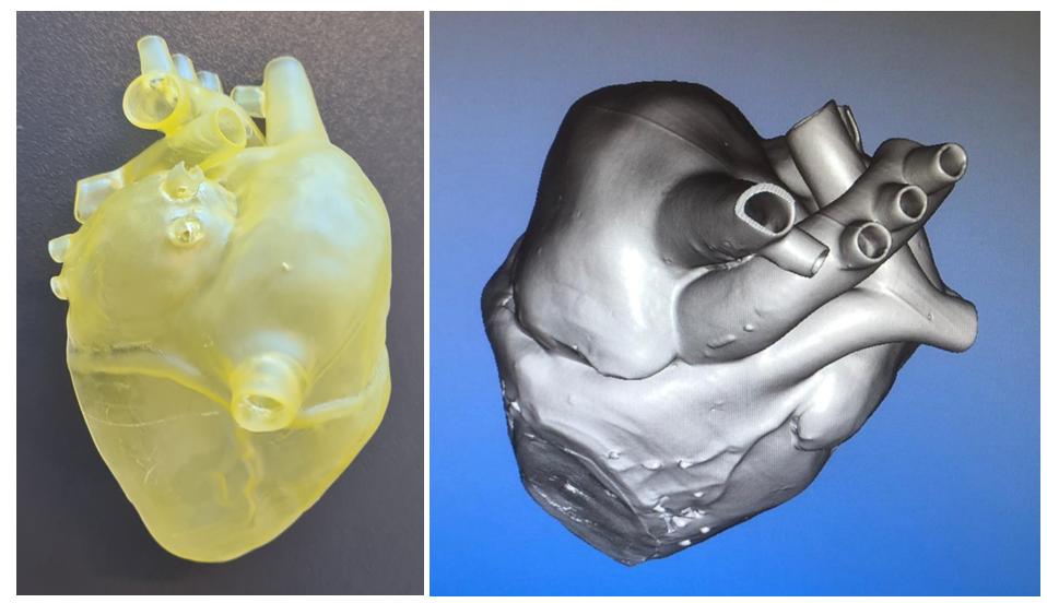 Untersuchung eines additiv gefertigten Messphantoms eines menschlichen Herzens